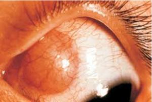 Cisticercosi della congiuntiva oculare