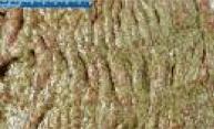 Immagine endoscopica di Colite Pseudomembranosa