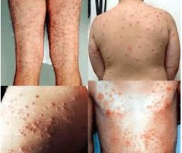 Schistosomiasi cutanea