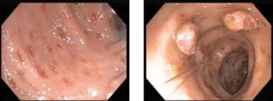 Lesioni coliche da Strongyloides