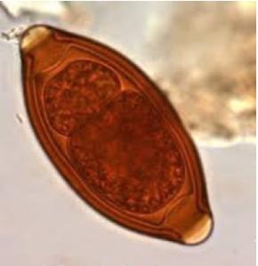 Uova cilindriche con opercolo del Trichuris Trichiura